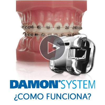 Damon brackets